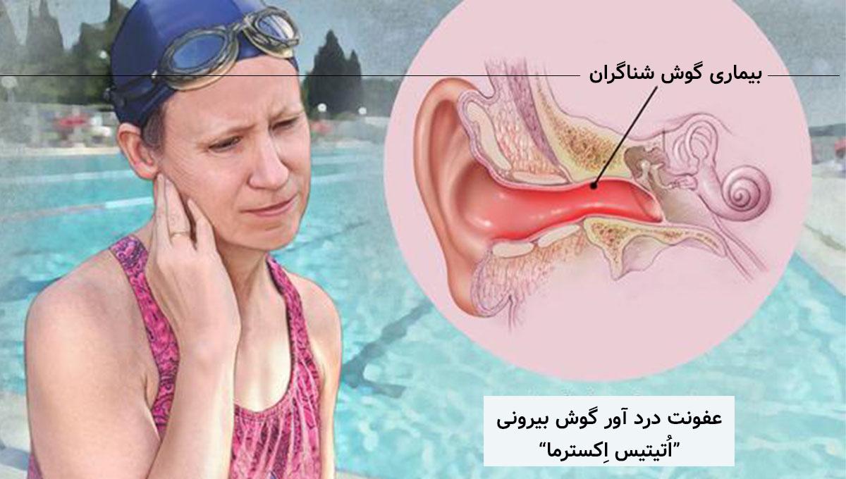 """-گوش-شناگران بیماری """"گوش شناگران"""""""